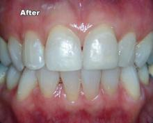 anterior-after