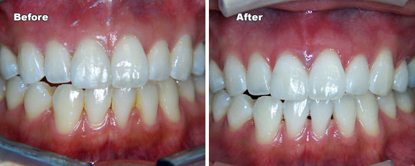 Professional Teeth Whitening Scripps West Dental Family And
